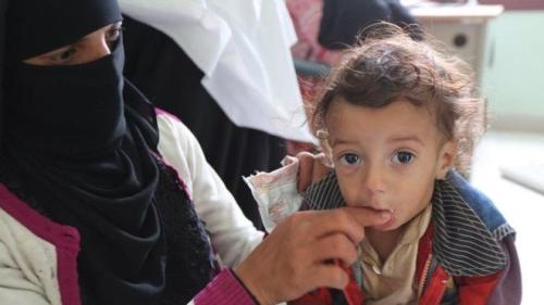 Yamen:-Inkabadan Shan Milyan Oo Ka Tirsan Carruurta Yaman Oo Wajahaya Macaluul -