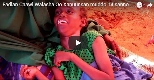 Daawo:-Inan Yar Oo Muddo 15 Saano Xanuunsaysay Oo Ubahan Gurmad Deg-Deg Si Lagu Geeyo Dhakhtar Dibada