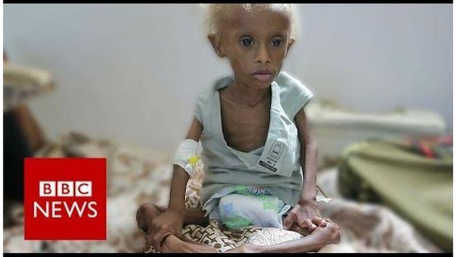 Xulufada uu hogaamiyo Sacuudiga oo dalka Yemen u ballan qaaday gargaar.