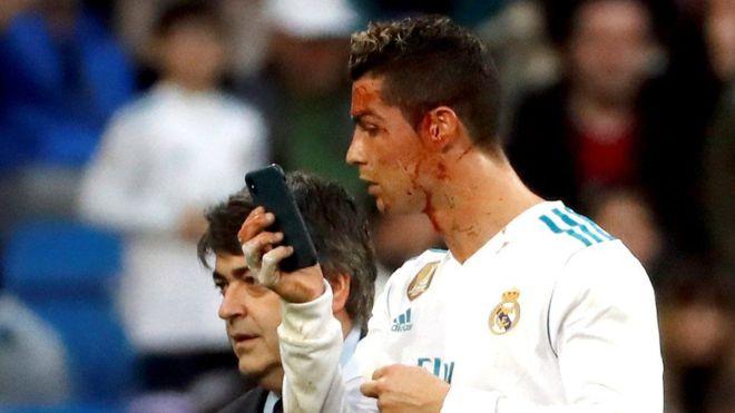 Ciyaaryahanka Ronaldo Oo muraayad isku eegay garoonka dhexdiisa Iyo Taageerayaasha Oo Ku Qayliyay.
